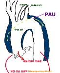 강동경희대병원 대동맥수술 증례 - 급성 대동맥 박리의 수술 (2) , 75세 여자환자 (2) - 인조혈관 치환술