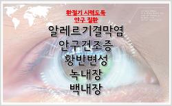 안구건강정보: 안구건조증, 황반변성, 녹내장, 백내장, 노안수술, 눈건강생활지침, 눈건강에 좋은 음식