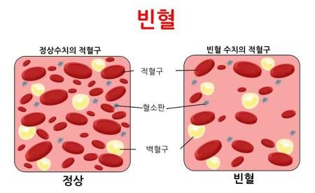 간호조무사 - 빈혈, 임산부 빈혈시 헤모글로빈 수치