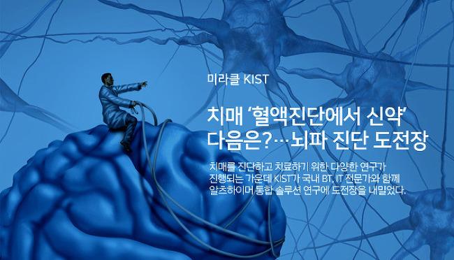 치매 '혈액진단에서 신약' 다음은?...뇌파 진단 도전장