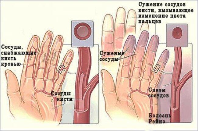마그네슘 부족증상, 방치하면 안되는 8가지 이유?
