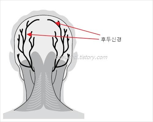 후두 신경통 증상