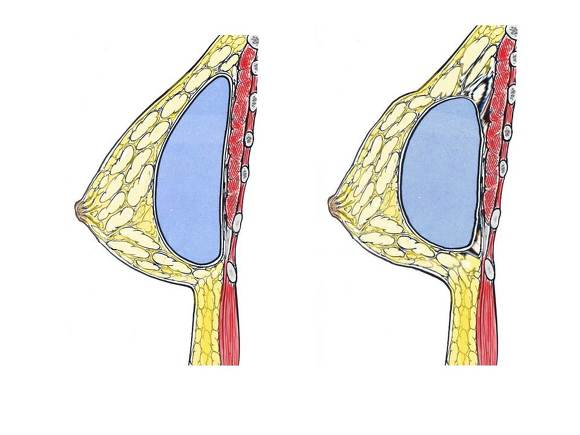 가슴성형부작용,가슴성형수술