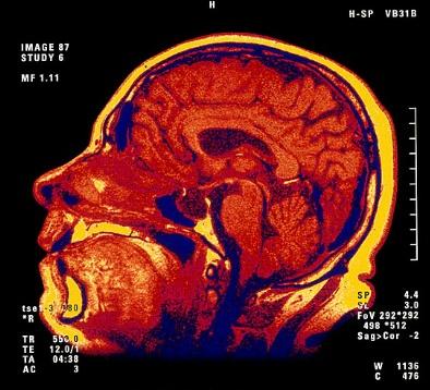 우리몸의 CPU!! 두뇌를 더 젊게하는 작전!