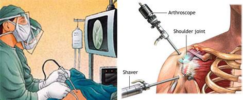 어깨 관절와순 수술: 관절경(arthroscope), 세이버(shaver)