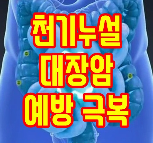 천기누설 대장암