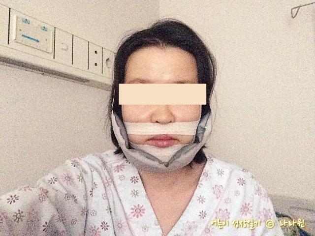 양악 핀제거 수술 다음날 퇴원